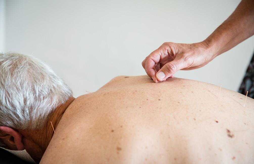 Sabine Vahling setzt Akupunkturnadeln auf dem Rücken eines Patienten