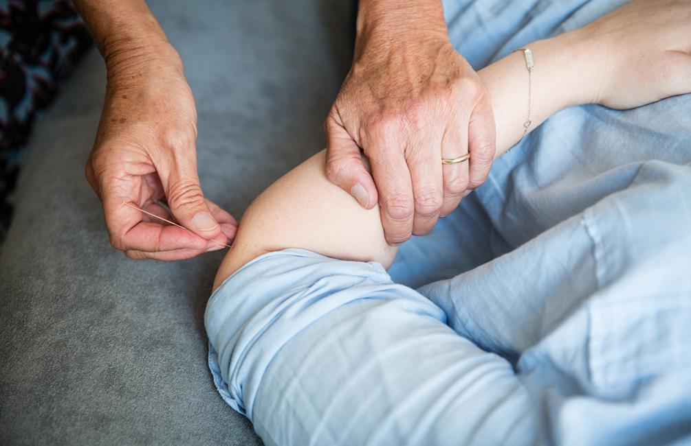 Sabine Vahling setzt Akupunkturnadeln im Arm eines Patienten.